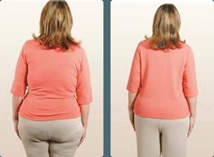 SlimShapewear prije i poslije